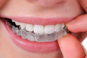 Dental teeth whitening Bubnik Dental dentist Brenda Bubnik Azilda Chelmsford Sudbury