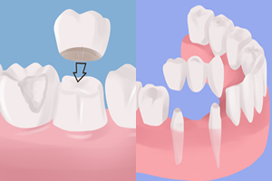 Dental Crowns Bridges Bubnik Dental Dr. Brenda Bubnik Dentist Azilda Chelmsford Sudbury dentistry